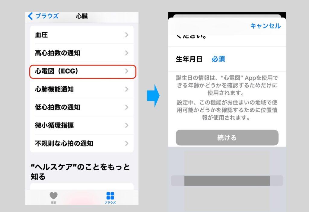 Apple Watchの日本で有効化された心電図機能の設定方法